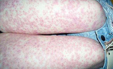 meningococcal rashes #11