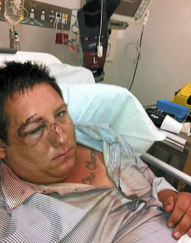 Andrew Rebetzke claims police used excessive force.
