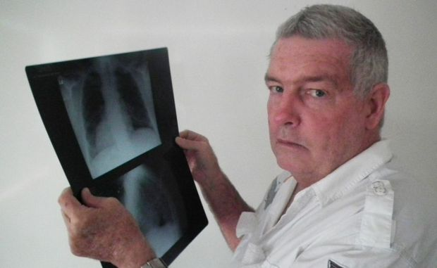 A specialist diagnosed Graeme Johnson as having lung cancer after he was given the wrong scans.