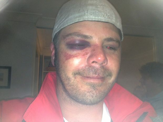 Bashing victim Drew Atkins.