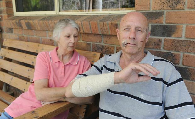 Rosena and Robert Franklin show some of his injuries after the kangaroo attack.