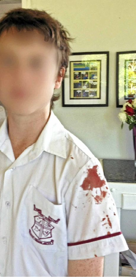St Joseph's College Year 8 student Lachlan Raferty was stabbed with a pen by a classmate during school recess.