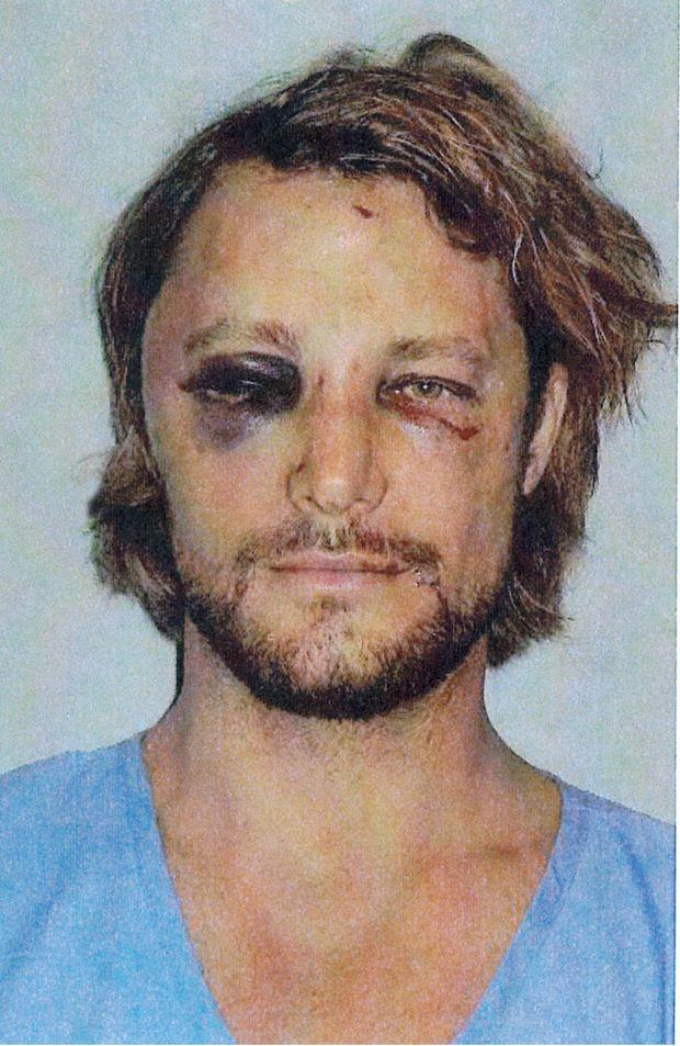 Gabriel Aubry's injuries