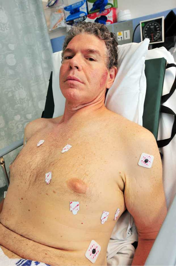 Cyclist Greg Cummings cannot remember anything about his accident.