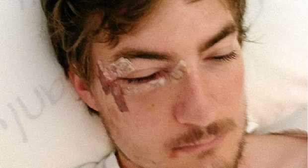 SAVAGE ASSAULT: Rick Niven recovers in hospital after being assaulted and having surgery.