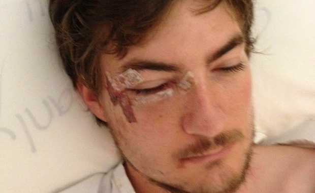 Rick Niven in hospital after being assaulted in Noosa before Christmas.