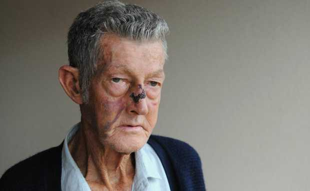 Robert Turvey suffered a broken nose after being attacked near his Anzac Avenue home.