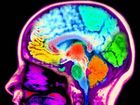 Depression could change the brain, study finds