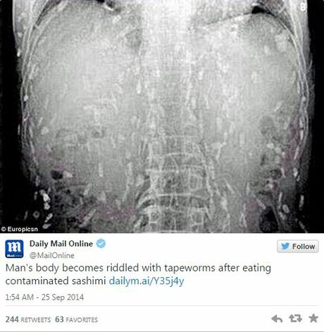 Sushi lover riddled by tapeworms after too much raw fish for Raw fish parasites