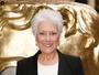 Lynda Bellingham dies after battle with colon cancer