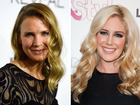 HEIDI Montag on Renee Zellweger after her own decision to undergo surgery: 'When I see people who look totally different, I have empathy'