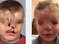 Boy born with no nose, eyes or useable mouth given surgery