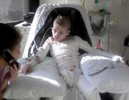 Mum won't forget moment burns victim woke from coma