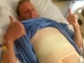 A CHAMPION tree climber from Mullumbimby who broke his back after being hit by a car in Singapore, has been released from hospital.