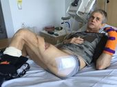 SHARK attack survivor Craig Ison has told the ABC he will never go back into the water.