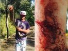 Big python leaves snake catcher bloody and bruised