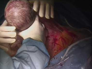 After Dr Wallman made the incision and moved the baby's head and shoulders to the right position, the new mum reached down, grasped her baby under its shoulders, pulled him out, and laid him on her own chest.