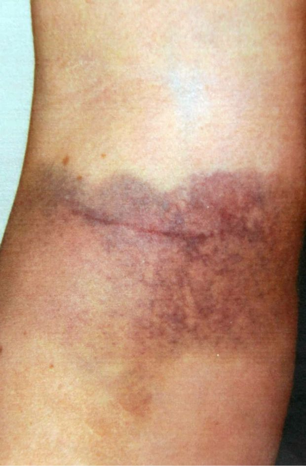 Bruising on a Goonellabah woman, suffered as a result of an assault by a police officer.