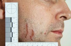 IN EVIDENCE: Police photographs of marks on Gerard Baden-Clay's skin used as evidence in court.