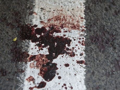 Blood left after the attack on a pub patron in the carpark on the Shamrock Hotel.