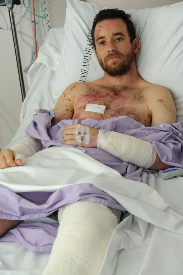 Timo Fuchs in Nambour General Hospital after suffering an horrific dog attack leaving him with a broken leg and multiple cuts and bruises. Photo: Iain Curry / Sunshine Coast Daily