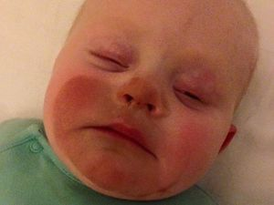 Parenting fail: Mum accidentally fake tans baby