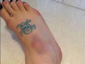 Kelly Osbourne fractures foot