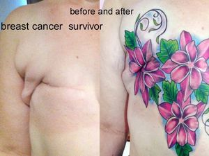 Turning breast cancer scars into beautiful tattoo art