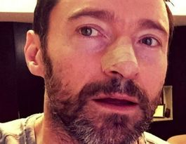 Hugh Jackman being treated for skin cancer