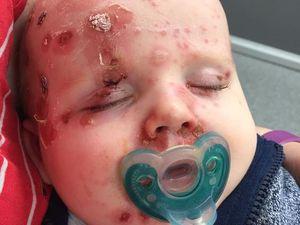 Mum's shocking vaccination warning