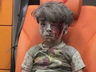 THE brother of a Syrian boy whose photograph has come to symbolise the suffering of civilians in war-torn Aleppo has reportedly died of his injuries.