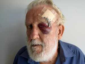 Warwick retiree relives alleged machete attack