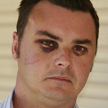 Michael Parker, a 32-year-old television executive, was bashed in a random attack in Mooloolaba on Monday. He has a massive fluid-filled lesion on his head, bruised eye sockets, lacerations and a bloodshot eye. Photo: Barry Leddicoat/174631