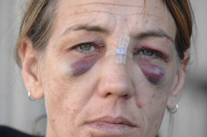 Kate Brighton carries the scars of an alleged assault in a road rage incident in South Grafton.