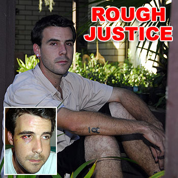 Peregian Beach man Huon Mitchell was bashed in July 2006, during an unprovoked attack, which left him with serious injuries, inset. Photos: Geoff Potter