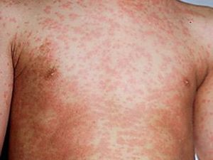 Health warning: Measles confirmed in Toowoomba