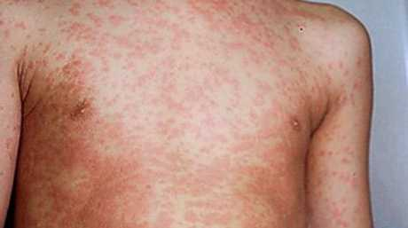 An image of an adult suffering a measles infection