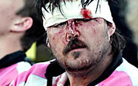 Wollongbar-Alstonville captain Matt Scott nurses battle wounds from Saturday's clash with Coolangatta-Tweed.