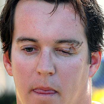 Luke Thompson lost the sight in his left eye two years ago. Photo: Warren Lynam