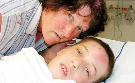 Lismore Public School student Blake McMaster, 11, with his mother Olga, recovering in Lismore Base Hospital.