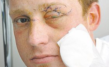 Kyle Parkinson shows the extent of his injuries after a recent glassing attack at the