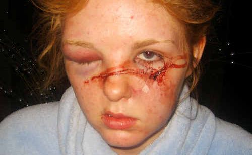 Emma Guy, 17, suffered shocking facial injuries when she was attacked at a party.