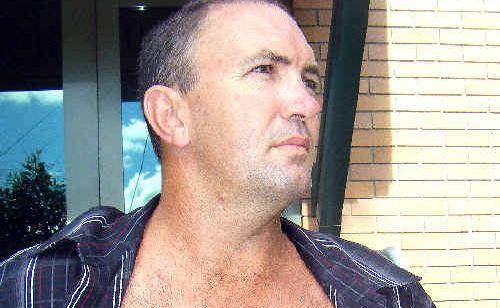 Sean Keidge shows a large scar down his abdomen.