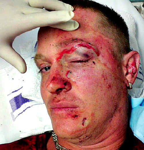 Facial injuries suffered by a former Coffs Harbour man last weekend in Queensland.