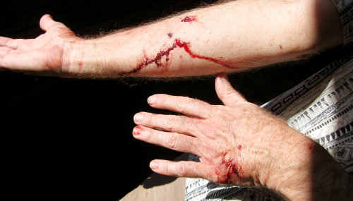 The bite wounds inflicted on Fr McDonald in the dog attack.