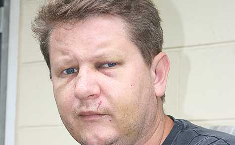 Peter Strzelczk has been unable to work since being assaulted while working in Airlie Beach last week.