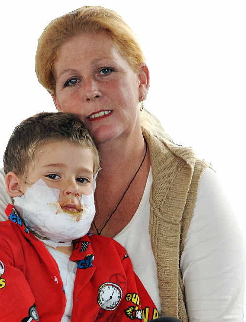 Meaghan Bentley says four-year old Tane's reflex action to stop, drop and roll saved him from sustaining life threatening burns.