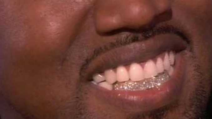 Kanye West, who is known for his extravagant spending habits, removed his entire bottom row of teeth and had a row of precious gems implanted in their place because he thought it was what