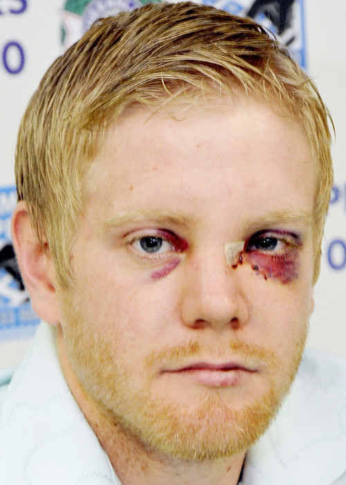 A 24-year-old man spoke to The Chronicle yesterday to recount his terrifying ordeal in which he was bashed and slashed with a knife. The attack happened in broad daylight in Russell Street.