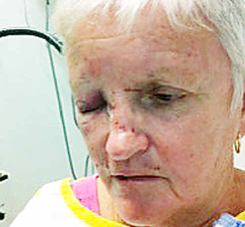 Casino woman Diane Davis, 63, may require surgery for injuries she received when viciously assaulted outside her home on Tuesday night.
